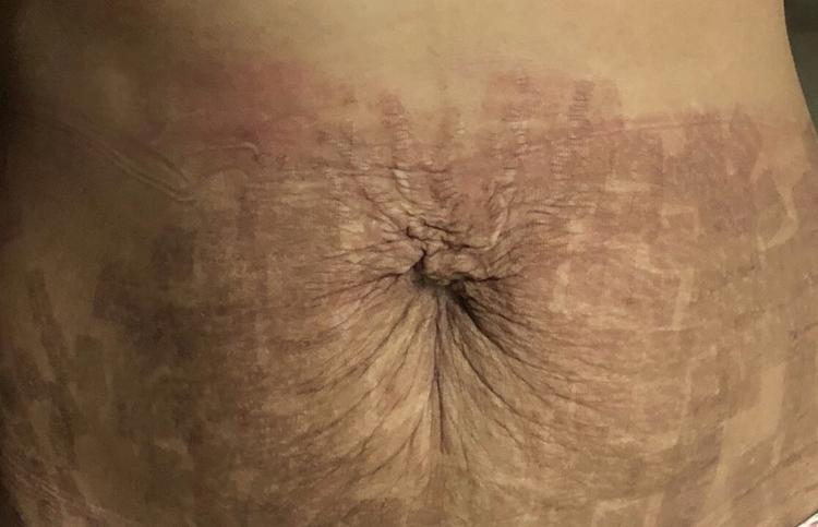 Cơ thể bị biến dạng của chị em sau khi làm đẹp tại Venus