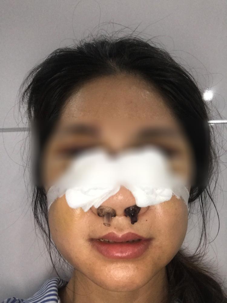 Chị V.T.H cấp cứu tại Bạch mai và được chuyển sang Bệnh viện Răng Hàm Mặt phẫu thuật và điều trị. (Ảnh do nhân vật cung cấp)