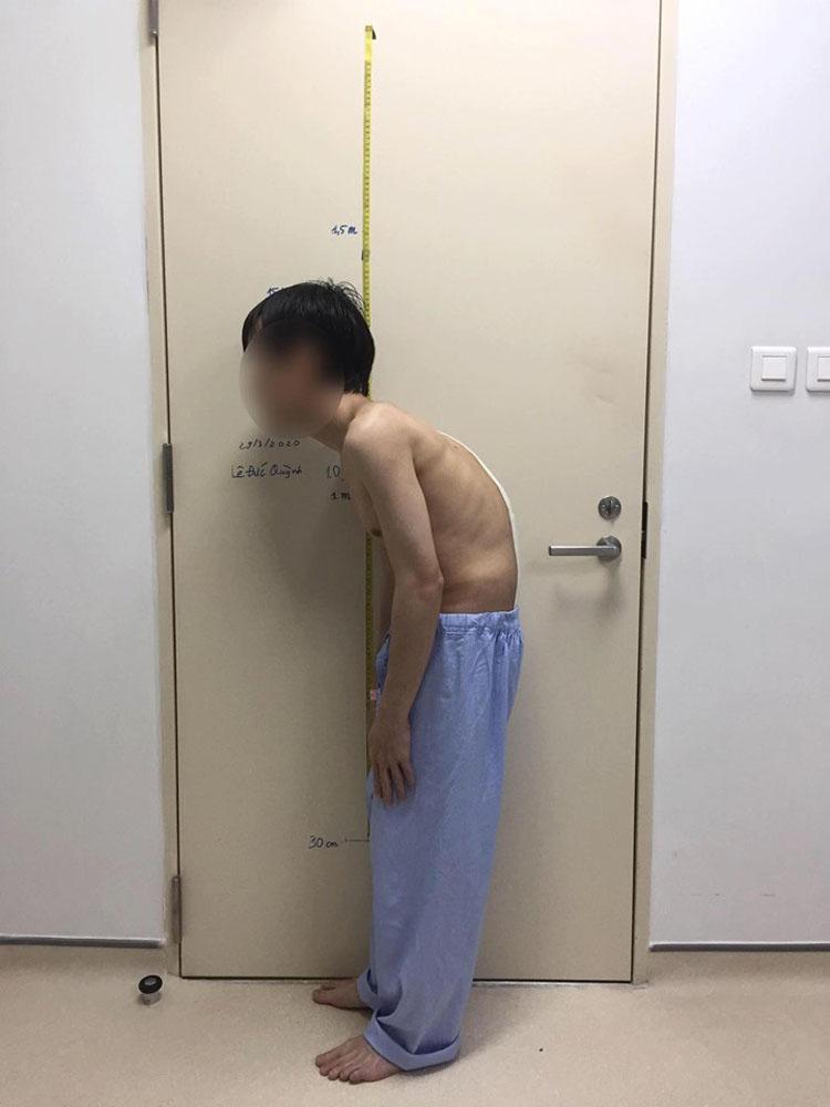 Sau phẫu thuật, bệnh nhân cao hơn 34cm.