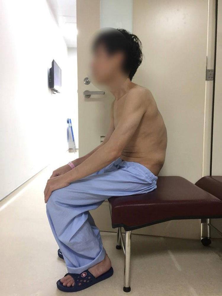 Sau gần 9 giờ phẫu thuật, chức năng hô hấp và tầm nhìn… của người bệnh được cải thiện rõ rệt.