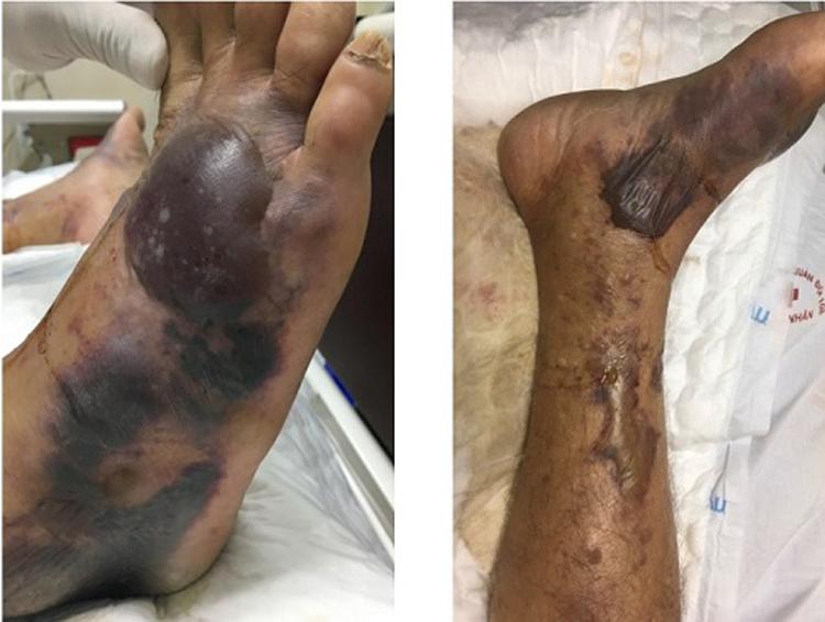 Những tổn thương do nhiễm khuẩn huyết, suy đa tạng do Vibrio vulnificus điều trị tại Khoa hồi sức truyền nhiễm, BV108.