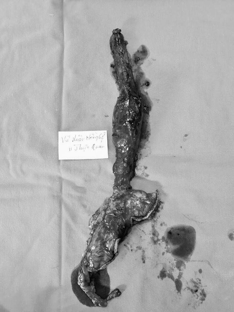 Hình ảnh khối u được cắt bỏ sau phẫu thuật.