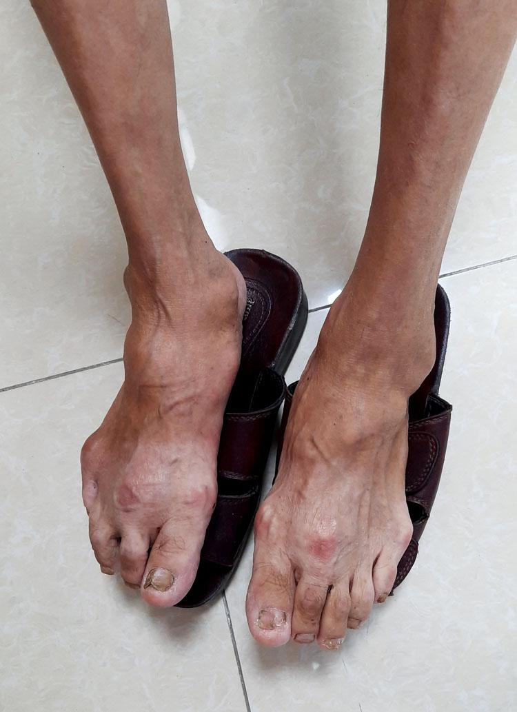 Hậu quả của gút gây ra viêm khớp, thường là các khớp nhỏ ở đầu gối, mắt cá chân, bàn chân và nhất là ở đầu ngón chân cái.
