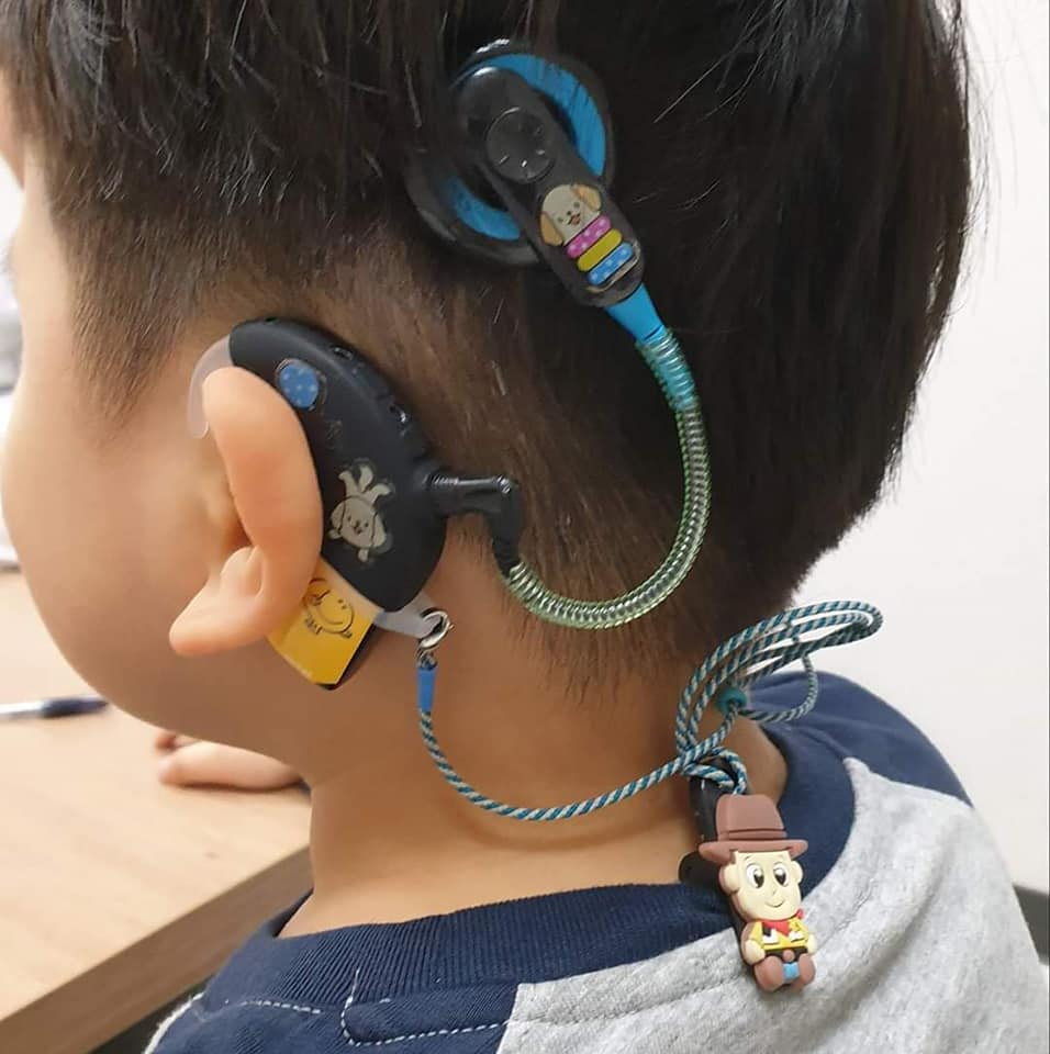 Bệnh nhân sau khi cấy ốc tai điện tử sẽ phải trải qua thời gian học phục hồi chức năng nghe nói. Cha mẹ phải đồng hành mới giúp trẻ có thể tái hòa nhập cộng đồng, học tập và phát triển như những trẻ bình thường khác.
