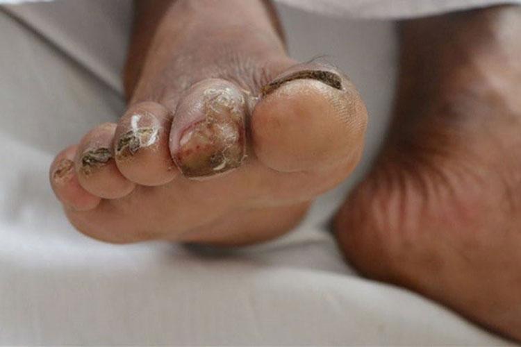Một bệnh nhân mắc bệnh Whitmore ở huyện Cẩm Xuyên, Hà Tĩnh.