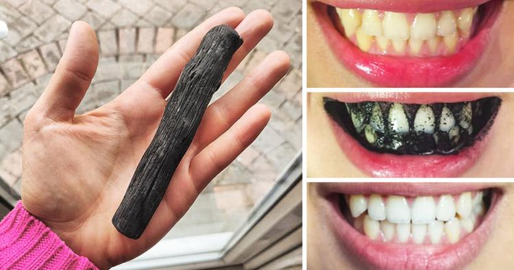 Làm trắng răng: Than hoạt tính hút và khóa chặt những phân tử mảng bám làm xỉn màu răng, nhờ đó giúp làm trắng răng.